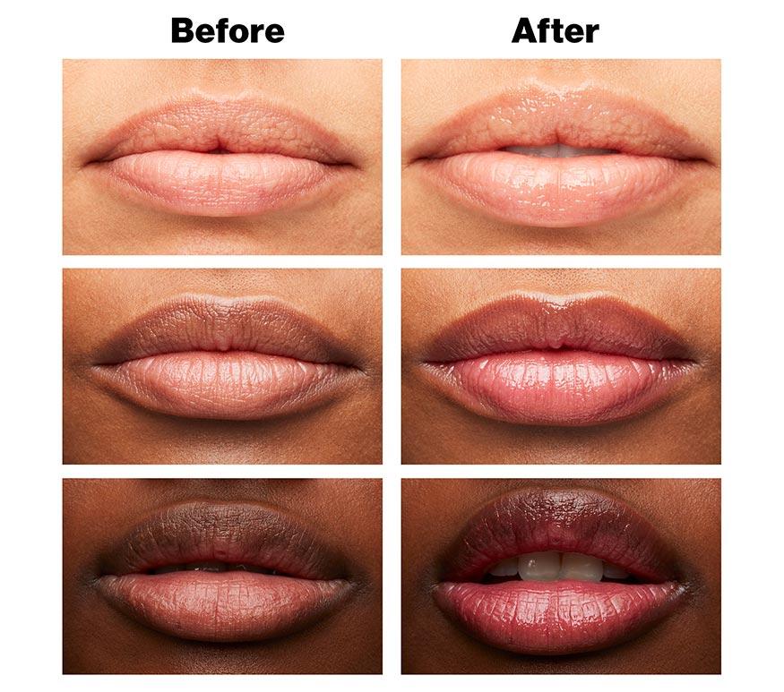 Baume pour les lèvres éclatant sur mesure